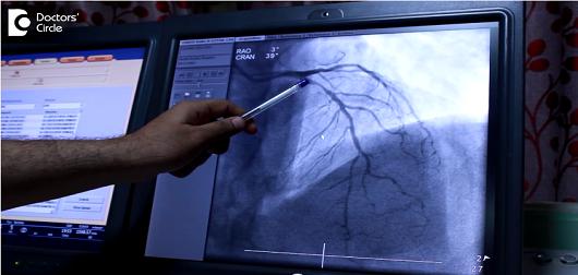 How is coronary heart block treated?