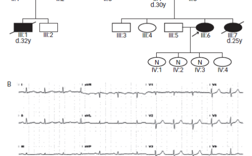 Malignant Ventricular Arrhythmic Storm Triggered by Short-coupled Premature Ventricular Contractions Arising from the Anterolateral Papillary Muscle