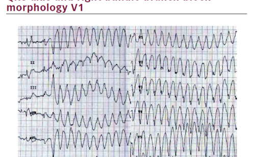Left Dominant Arrhythmogenic Cardiomyopathy Causing Sustained Ventricular Tachycardia – A Case Report
