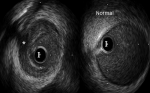 Role of Imaging in Spontaneous Coronary Artery Dissection – A Report and Review of Literature
