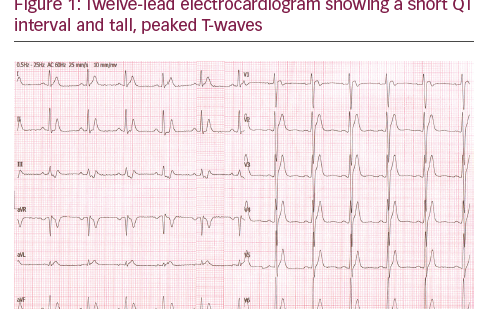 Dynamic T-wave Changes with Hump Appearance from a Higher Intercostal Space in a Short QT Syndrome