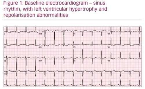 Intermittent Left Bundle Branch Block – A Challenging Case of Rare Electrocardiogram Phenomenon