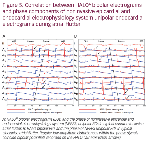 Noninvasive Phase Mapping of Atrial Flutter in Humans – Comparison