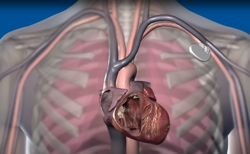 Cardiac Implantable Electronic Devices