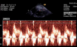 Differences in coronary artery blood velocities in the setting of normal coronary angiography and normal stress echocardiography