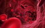 Plasma matrix metalloproteinases in neonates having surgery for congenital heart disease