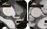 Influence of image acquisition settings on radiation dose and image quality in coronary angiography by 320-detector volume computed tomography: the CORE320 pilot experience