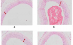 The inhibitory effects of polysaccharide peptides (PsP) of Ganoderma lucidum against atherosclerosis in rats with dyslipidemia
