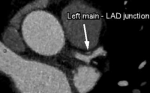 Subclinical coronary atherosclerosis identified by coronary computed tomographic angiography in asymptomatic morbidly obese patients