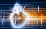 >Pseudoseizure with Pseudo-ventricular Tachycardia