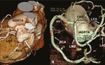 Single coronary artery from the right sinus of Valsalva