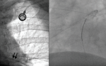 An unusual cause of ventricular tachycardia: Port-A-Cath fracture and embolization into the pulmonary artery