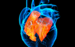 """Cardiac autonomic testing and treating heart disease. """"A clinical perspective"""""""
