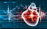 >Electrocardiograms Associated with Sudden Cardiac Death