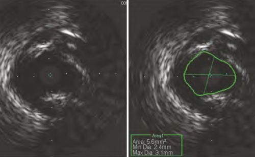 Evaluating Equivocal Left Main Stenosis with Fractional Flow Reserve – Not all Daughter Vessels are Created Equally